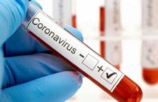 Türkiye'de 25 bin 980 kişinin koronavirüs testi pozitif çıktı, 340 kişi yaşamını yitirdi