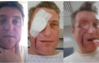 Enfeksiyon sanıldı, yüzünde dev bir delikle hastaneden ayrıldı!